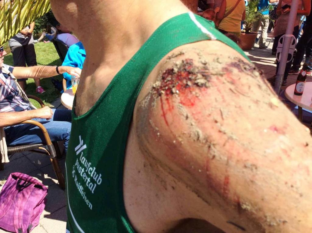 hermann-plaickner-allgaeu-panorama-marathon-ultra-2015-verletzung1